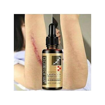 Lavender Skin Repair, Scar/Wound/Burn/Stretch Mark Remover Essence Oil