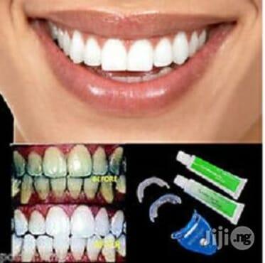 Laser Teeth Whitening Kit