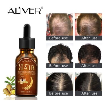Aliver Active 30ml Hair Growth Solution Regrowth Essence Preventing Hair Fall-off Women Men Anti-off