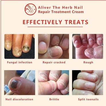 Aliver Fungus Nail Renewal Herb Foot Nail Repair Cream Protector/Nail Care Treatment Of Anti-Fungal Cream