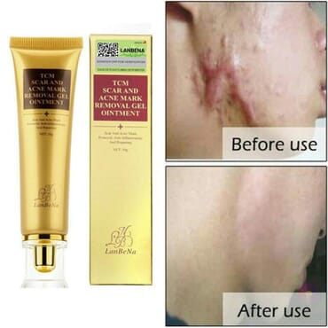 TCM LanBeNa Scar and Acne Mark Removal Gel Ointment