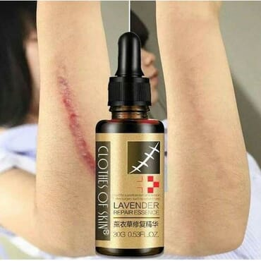 Lavender Skin Repair Essence Skin Scar Remover Wound Scar Remover Burn Scar Remover Stretch Mark Remover Surgery Scar Remover After Birthmark Remover Clothes For Skin